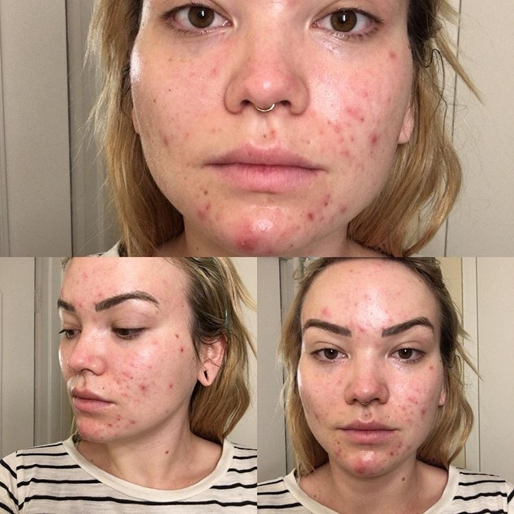 Is Fluoride the Cause of your Adult Acne? - Empowered Sustenance