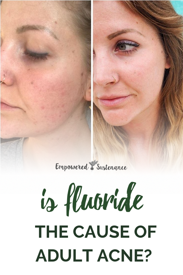 before and after image of woman with adult acne